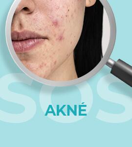 Přípravky proti akné