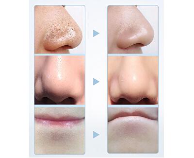 Kosmetický přístroj Poremax HOT&COLD BR-1490